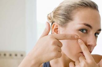 Les meilleures crèmes contre l'acné 2019. Des médicaments et des crèmes efficaces anti acné ? Ont-ils vraiment des effets ?